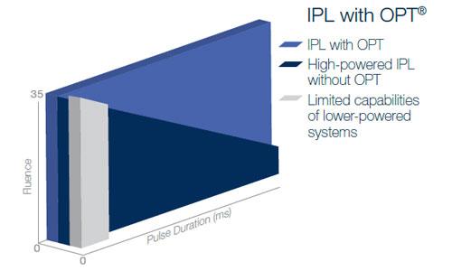 Optimal pulse technology